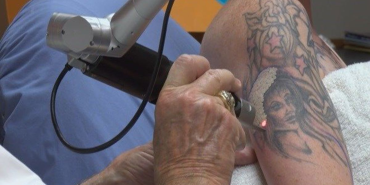 New laser tattoo removal heads to the Heartland