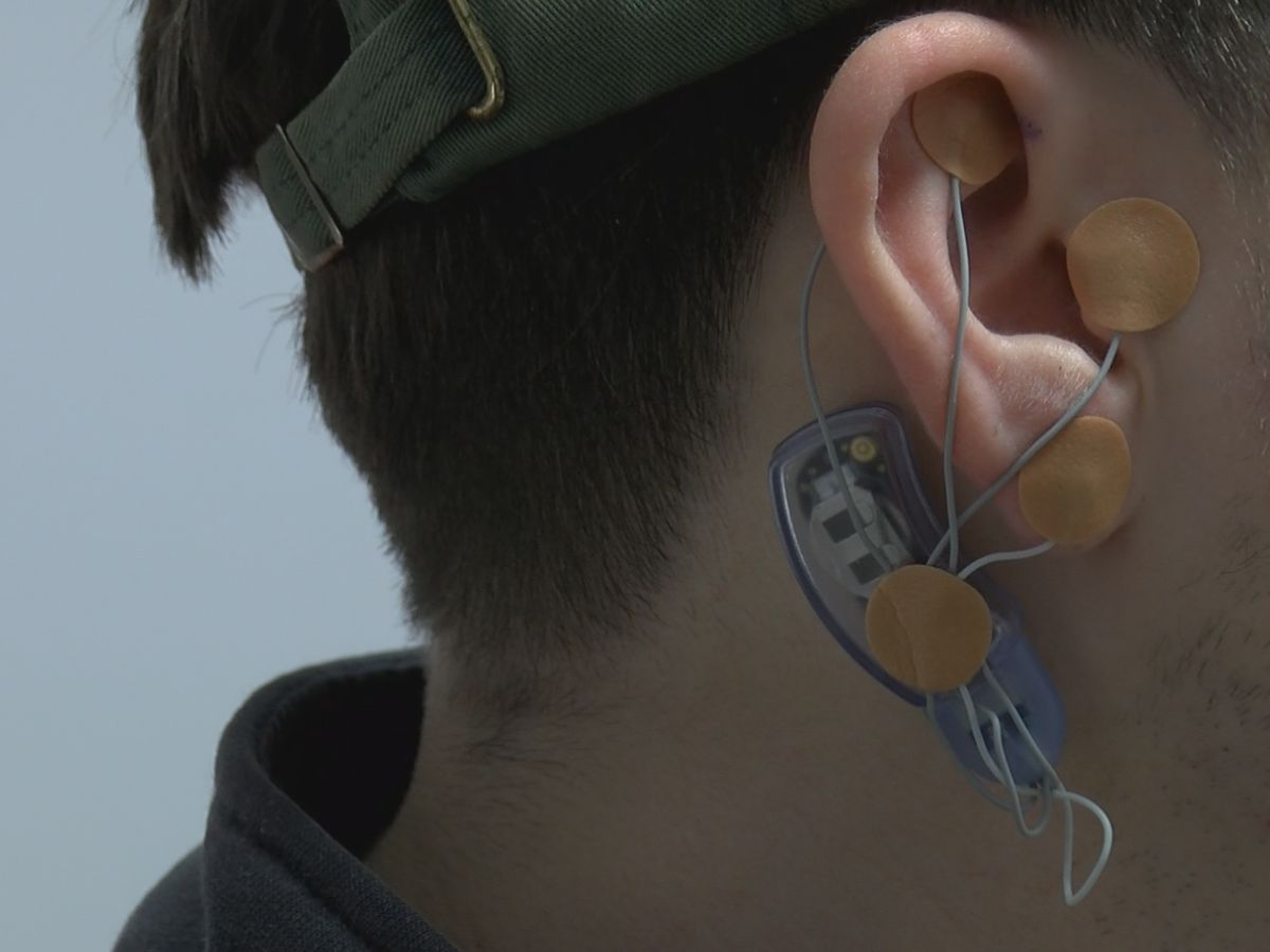 Carbondale clinic uses device to take away addiction withdrawal symptoms
