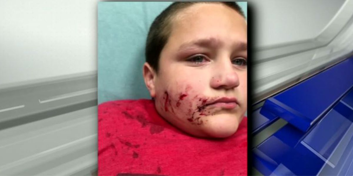 GRAPHIC: 12-year-old mauled by a pit bull in Ohio recovering at home