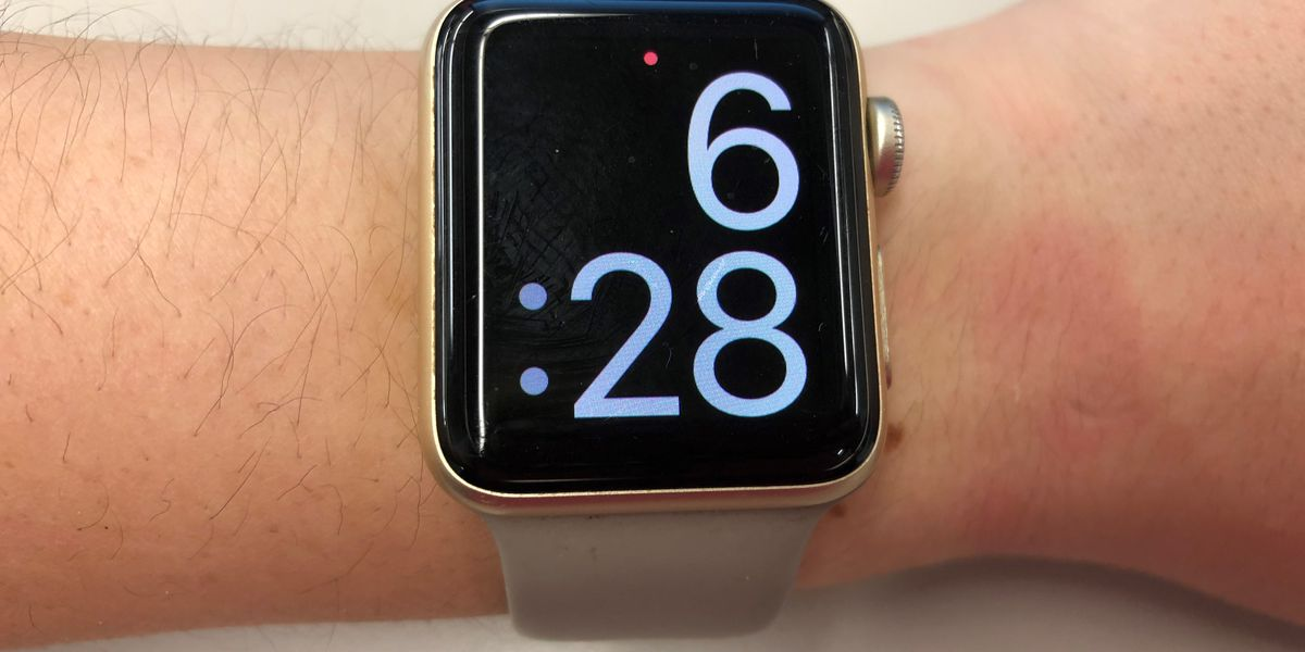 Do activity trackers monitor your heart rate accurately?