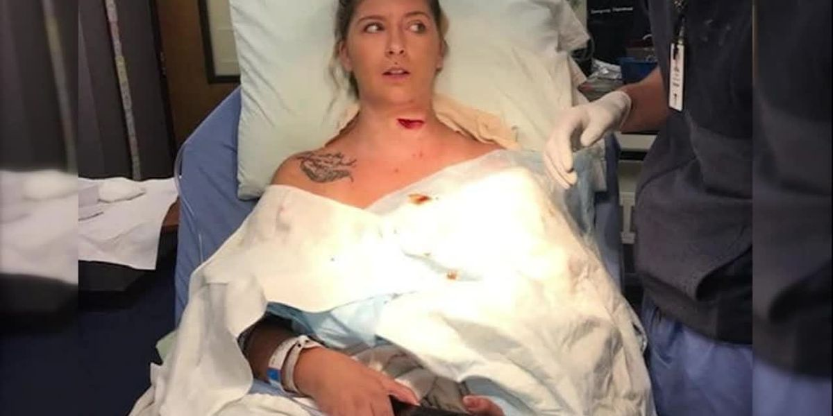 Graphic: Freak lawnmower accident slices open woman's neck