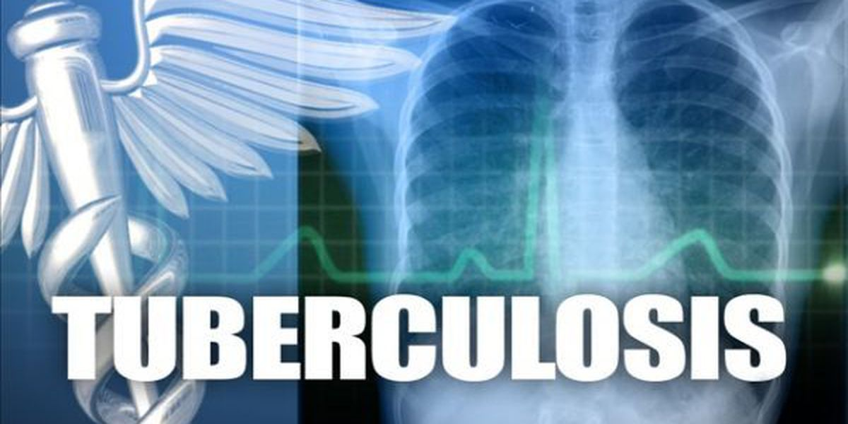 World tuberculosis day - Search for flight 370 - Services for Williams