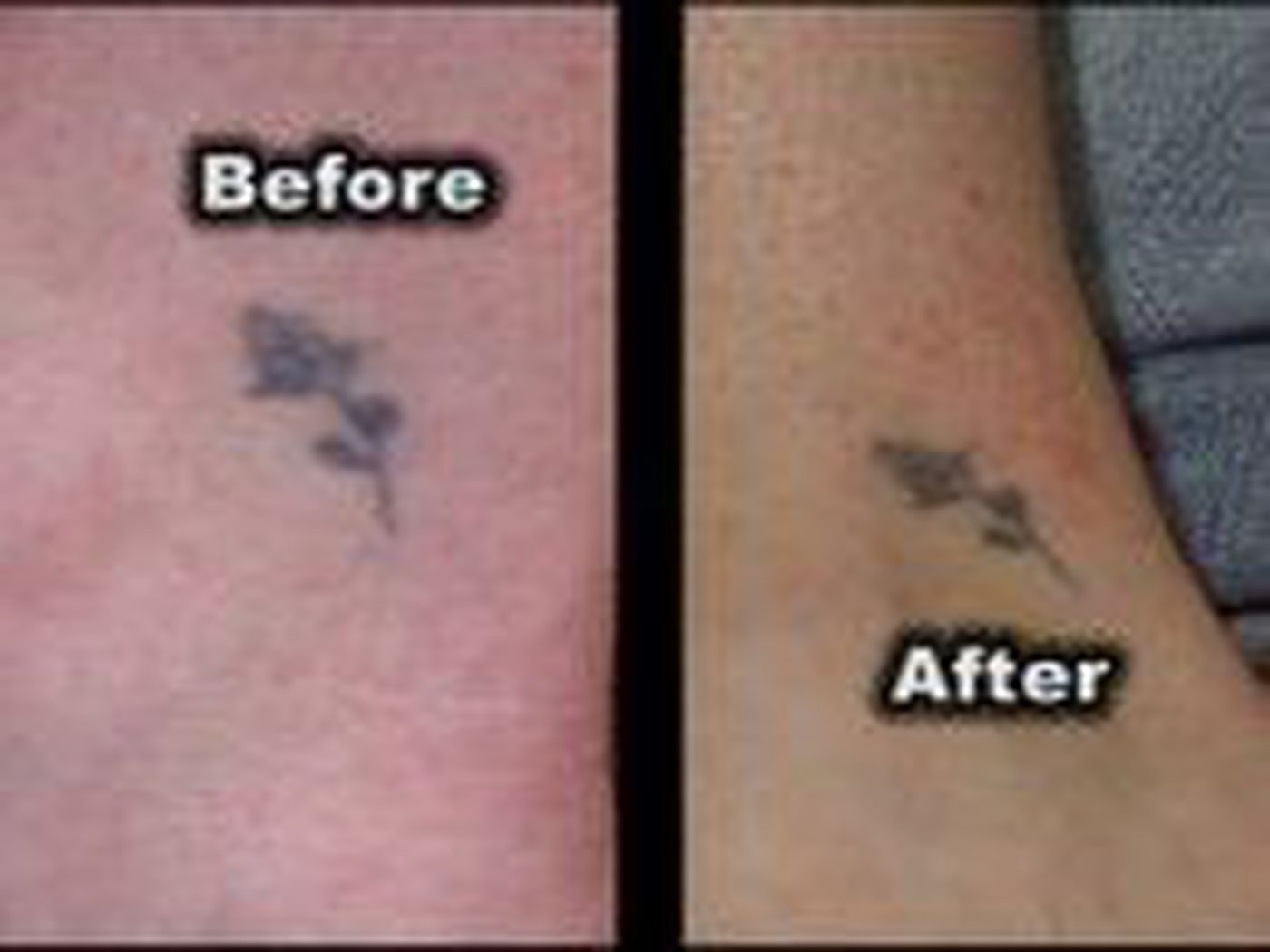 Wrecking Balm Tattoo Remover: Does it Work?